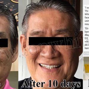 """10 ngày sử dụng Top White và feedback """"gây choáng"""" của vị khách hàng Singapore"""