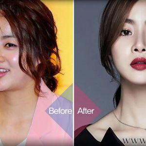 Giải Mã phương pháp giảm cân của sao Hàn khiến chị em bất ngờ