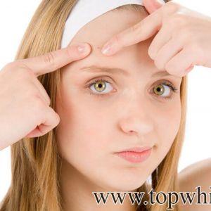 Hướng dẫn cách chăm sóc da mặt mụn và nhờn an toàn hiệu quả