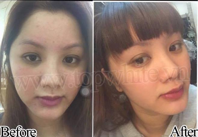 Top White - khách hàng trị mụn Ming Yu Ceci