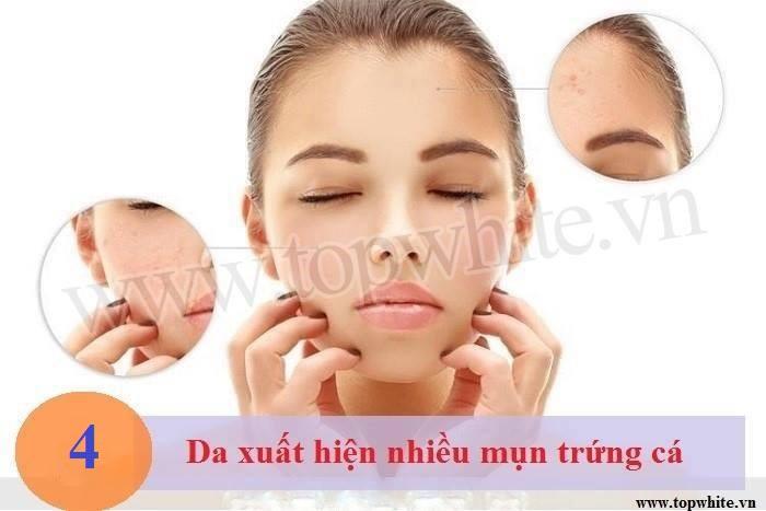 Top White mách bạn nên chữa trị sớm khi da có nhiều đốm vảy khô
