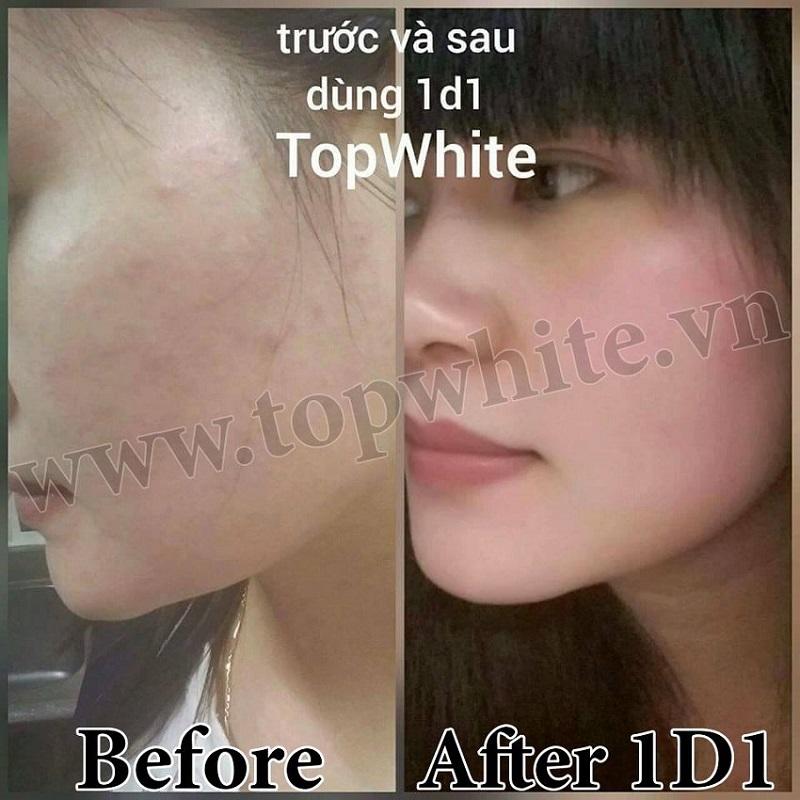 Ý kiến khách hàng sử dụng Top White