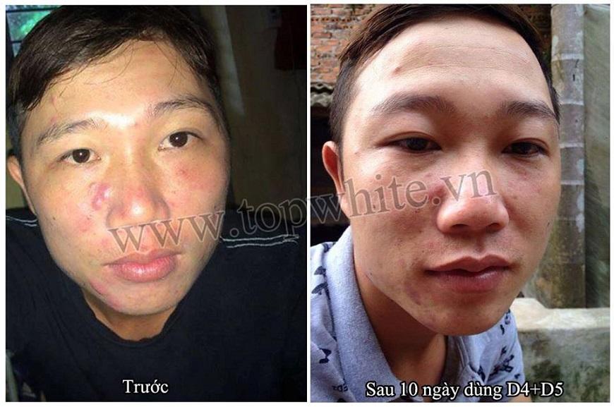 Top White trị mụn nhanh và an toàn với da