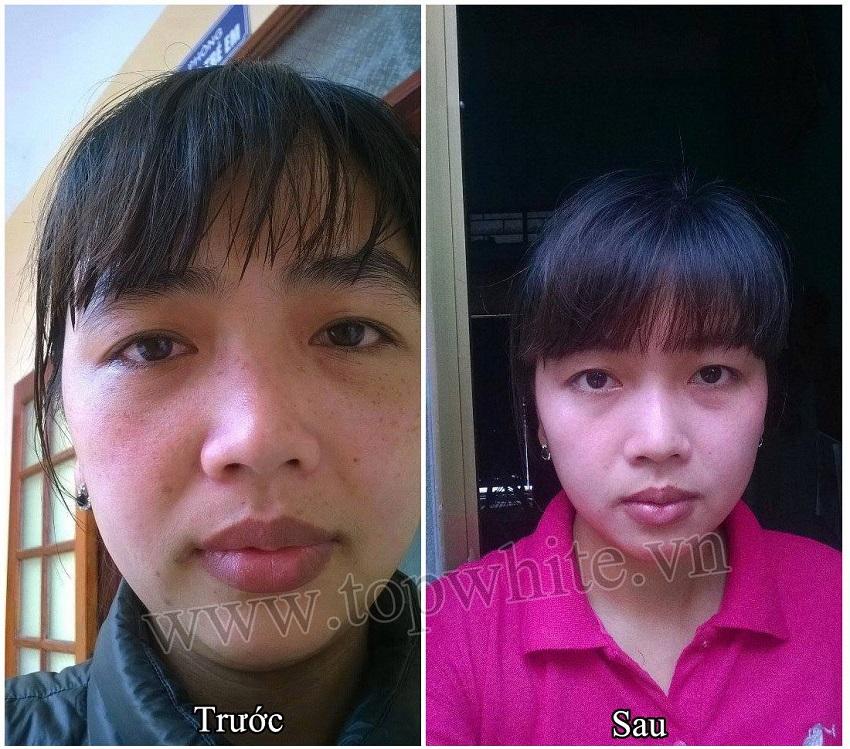 Khách hàng Top White ảnh trước và sau khi dùng