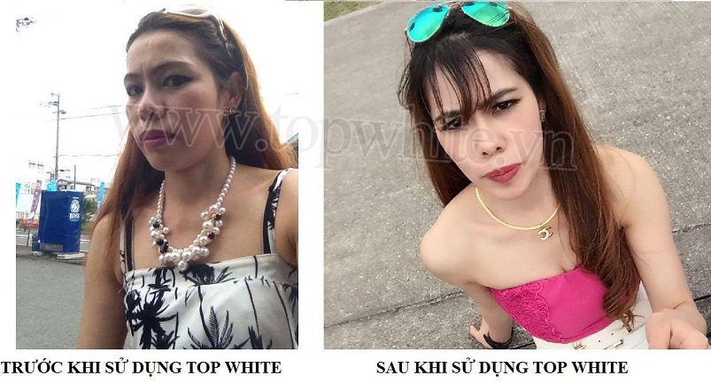 my pham top white khach hang thanh cong