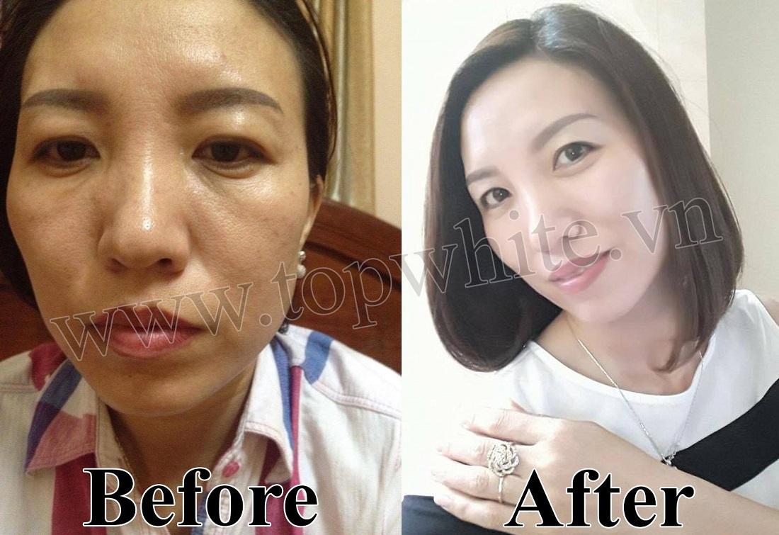 Khách hàng trước và sau khi sử dụng mỹ phẩm kem dưỡng trắng da ban đêm d1 Top White