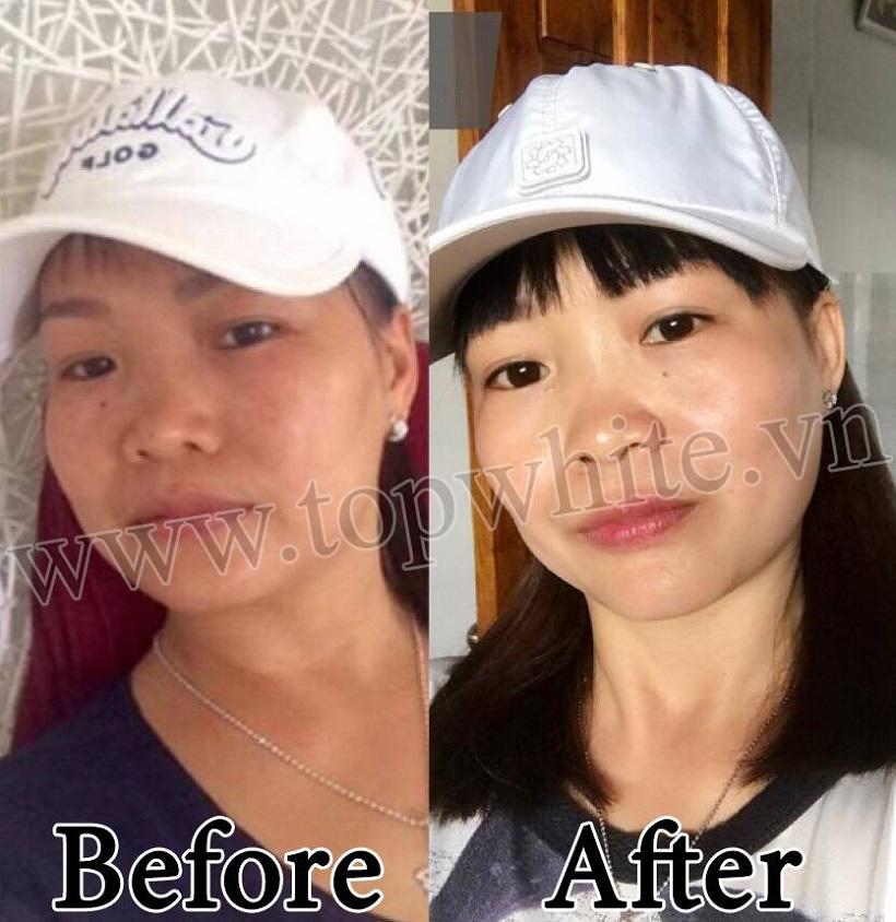 khách hàng trước và sau khi dùng top white