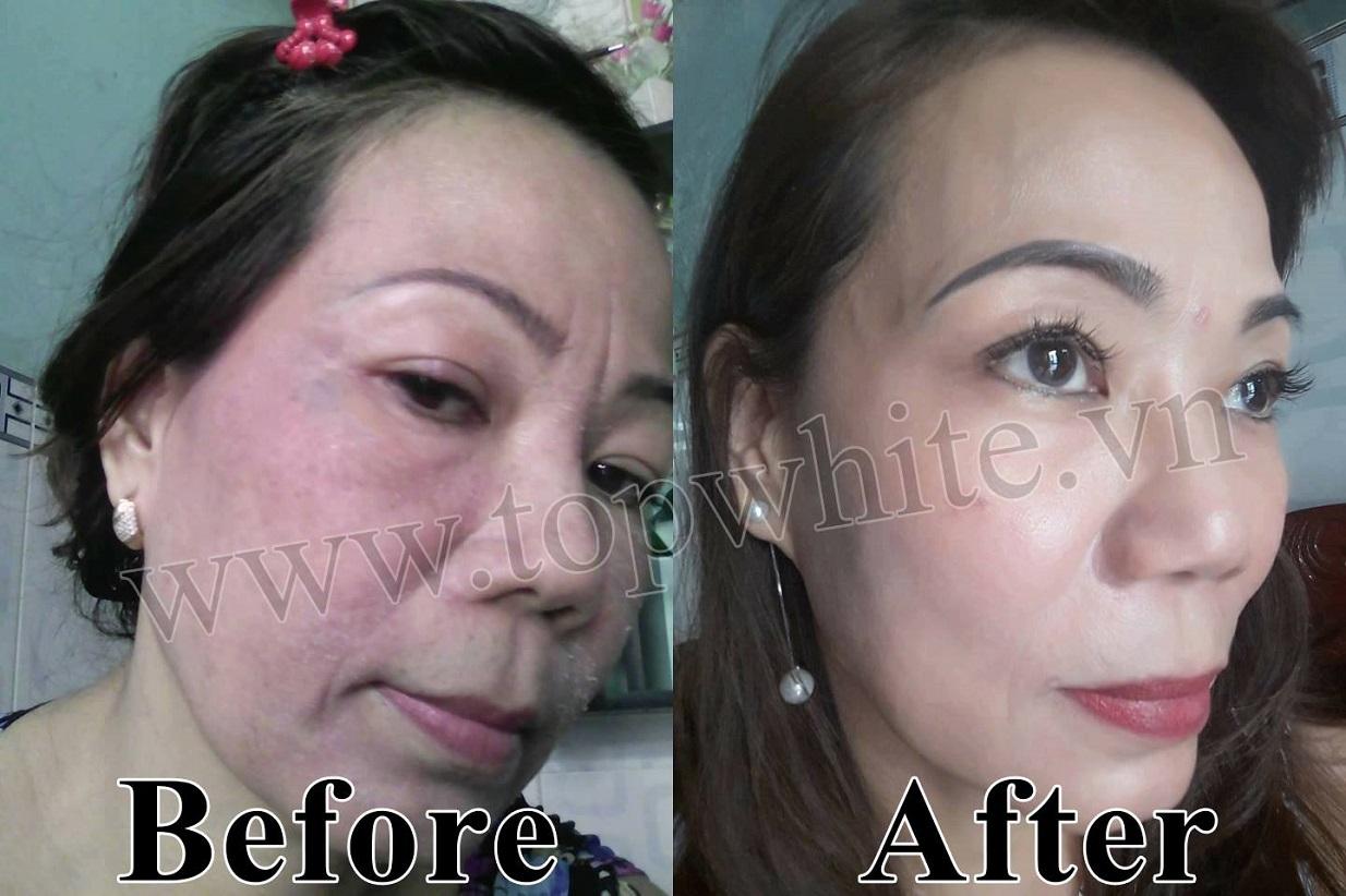 mỹ phẩm top white chăm sóc da mặt đúng cách