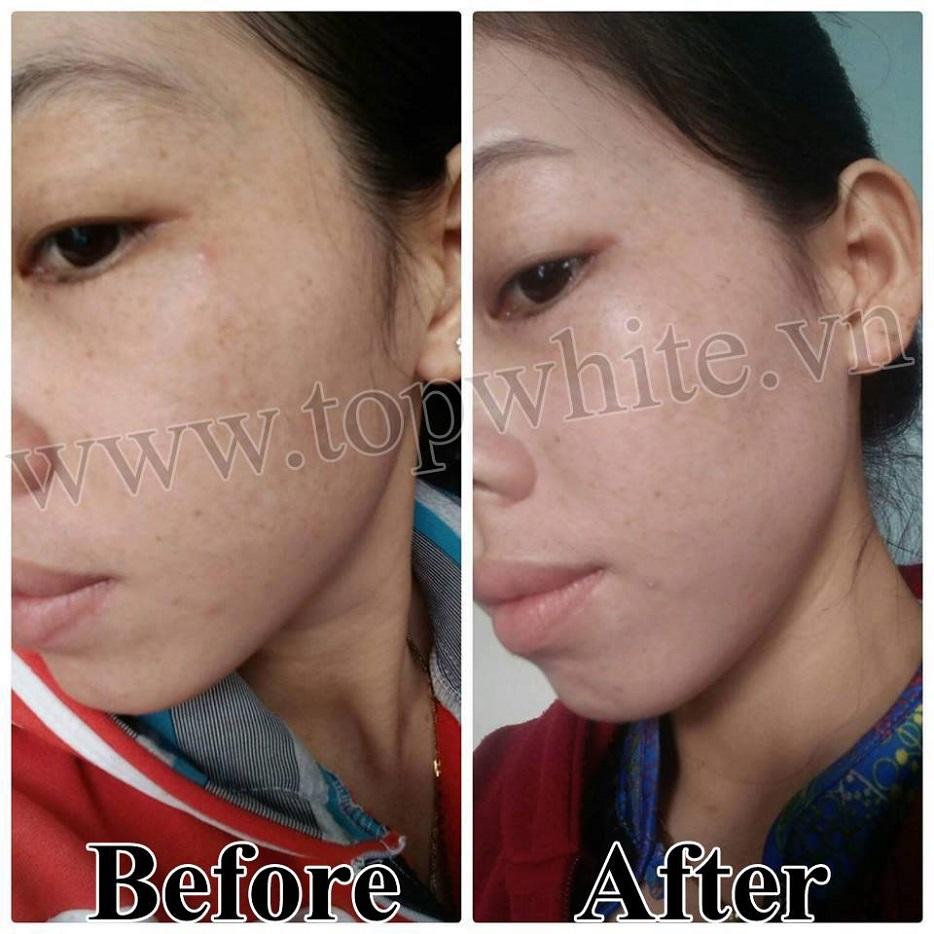 top white d6 serum dưỡng da mặt