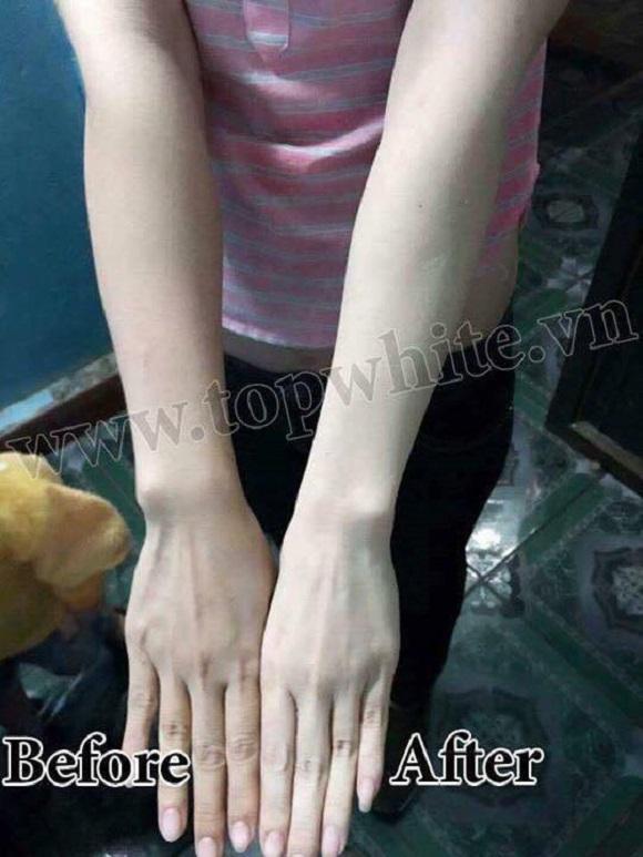 Bộ dưỡng da toàn thân top white