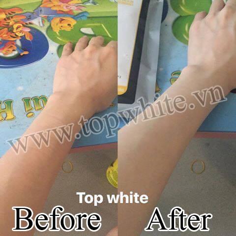 Top White hình ảnh khách hàng khi dùng sản phẩm