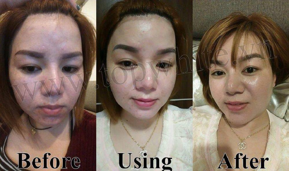 Khách hàng trước và sau khi sử dụng kem dưỡng trắng da ban đêm d2 mỹ phẩm Top White