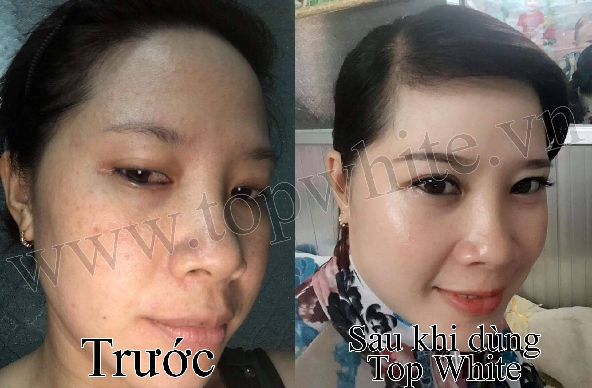 trị nám da mặt