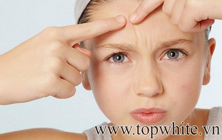 cách chăm sóc da mặt mụn và nhờn tốt nhất